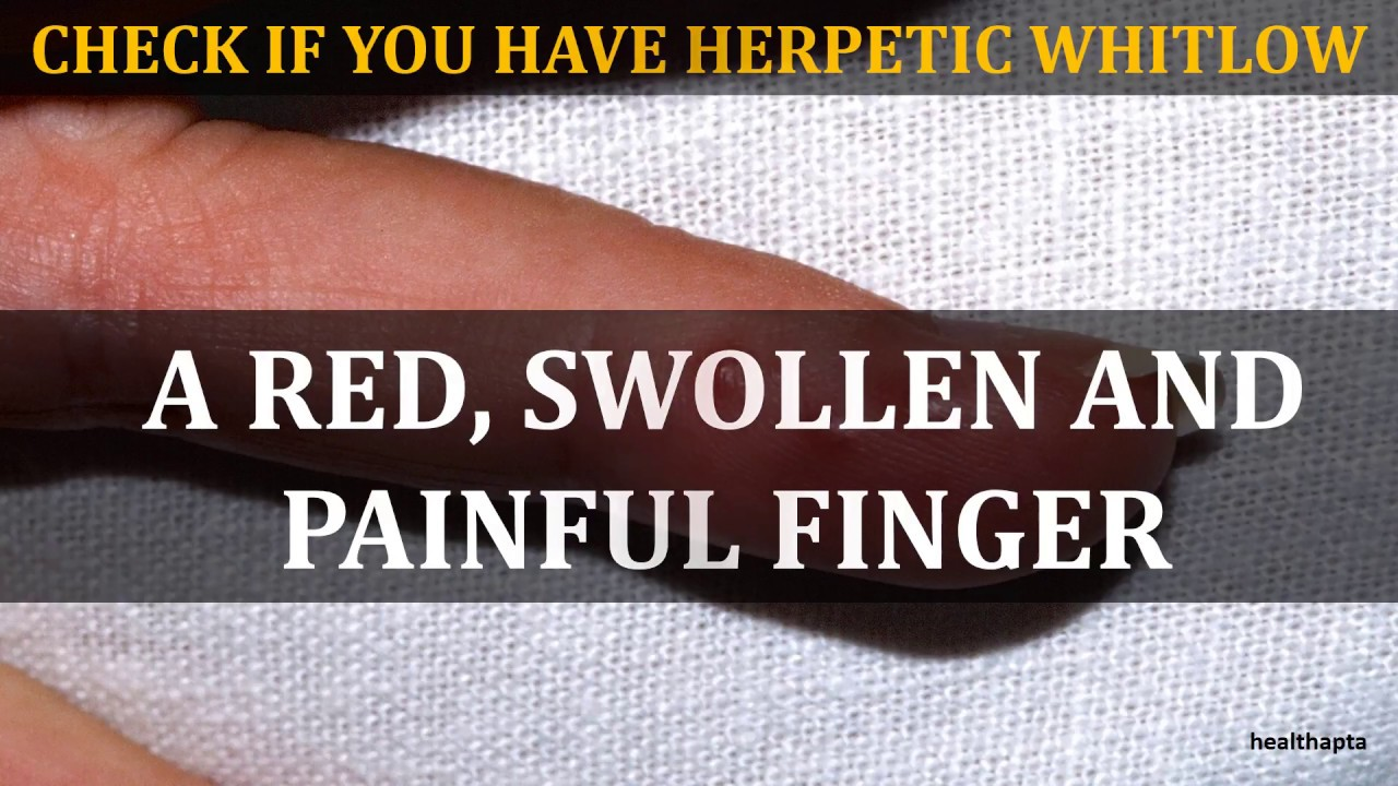 HERPETIC WHITLOW WHITLOW FINGER