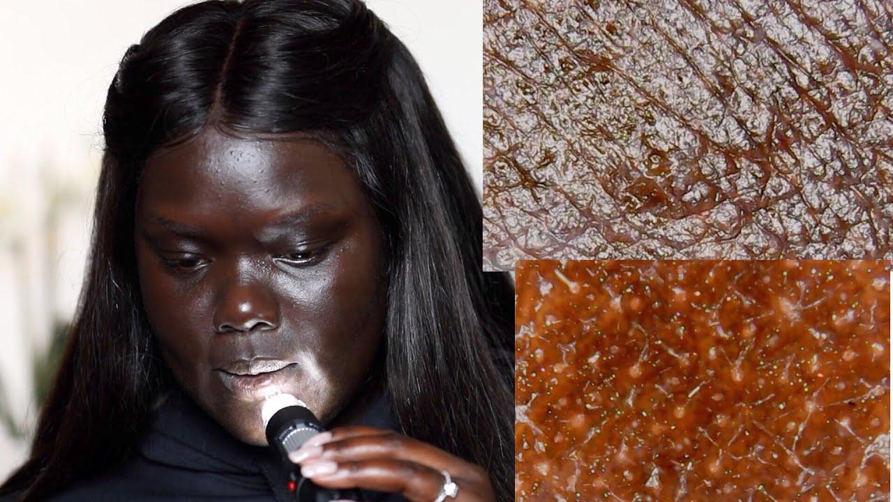 Looking at Dark Skin Under a Microscope    Nyma Tang