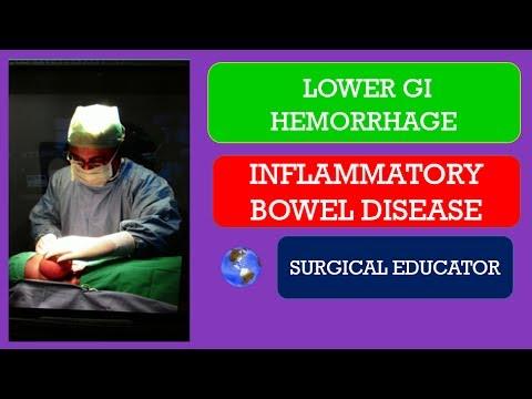 INFLAMMATORY BOWEL DISEASE - Lower GI Hemorrhage