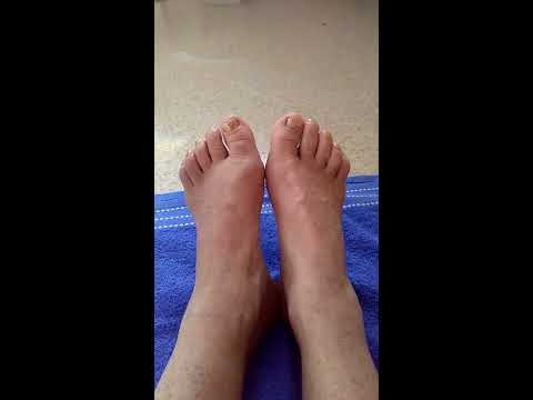 Happy Feet Foot Soak…. Kangen water  5.5