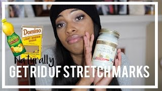 How To Naturally Get Rid Of Stretch Marks Tips Brown Sugar Scrub Youtube