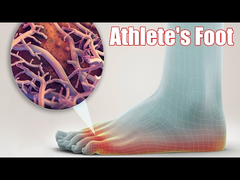 Home remedies for athlete's foot Natural Cure For Athletes Foot