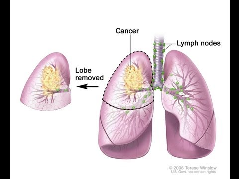 Lung Cancer: Recharge Biomedical - Dr Ed Park's Podcast 4 (short version)