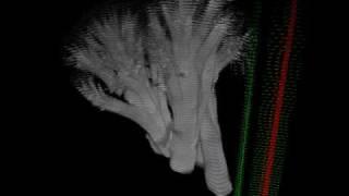 reassembled MRI broccoli slices