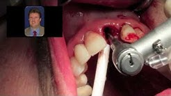 Immediate Dental Implant Surgery  - Dr Scott MacLean