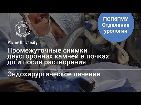 Двусторонние камни в почках: до и после | Гаджиев Нариман Казиханович, уролог-хирург