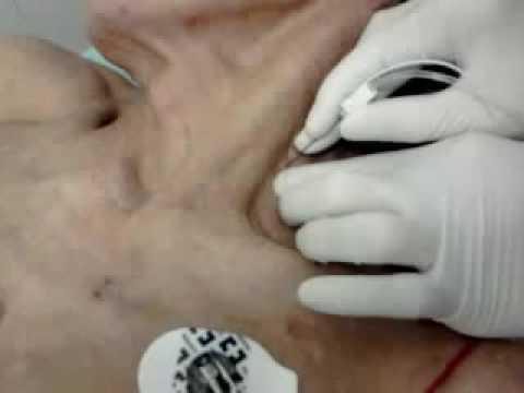 gây tê đám rối thần kinh cánh tay đường liên cơ thang