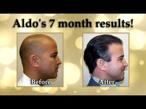 Dr. Brett Bolton Hair Transplant Surgery