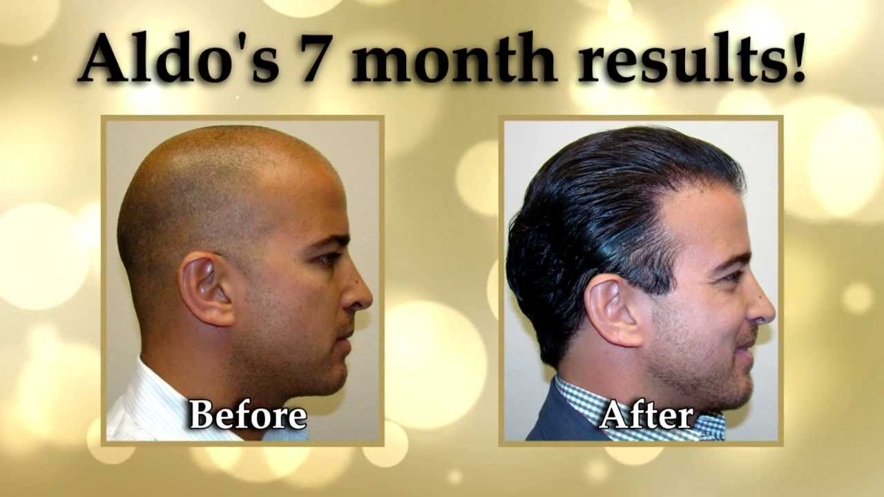 Hair transplant turkey canada