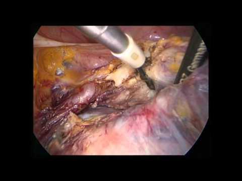 Gebärmutterentfernung - Possover.mpg