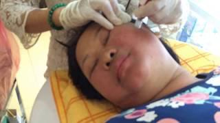 Trẻ Hóa Da - Thu Nhỏ LCl - Lăn Kim Làm Đẹp Cho Mẹ Chinh