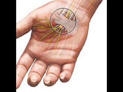 жить здорово онемение пальцев рук
