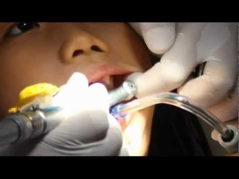 Dentist from Indonesia creates musical drill to help ease patients' fears