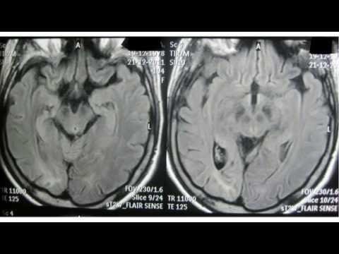 Эпилепсия и эпилептический синдром