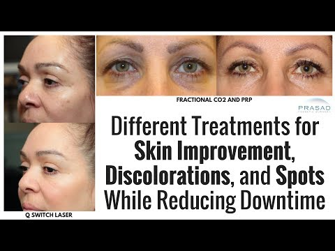 How to Treat Dark Spots, Acne Scars, and Improve Skin with Minimal Downtime