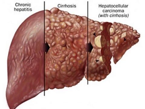 liver-cirrhosis-natural-treatment-|-part---1-|-health-first