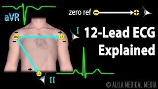 12 Lead ECG Explained, Animation
