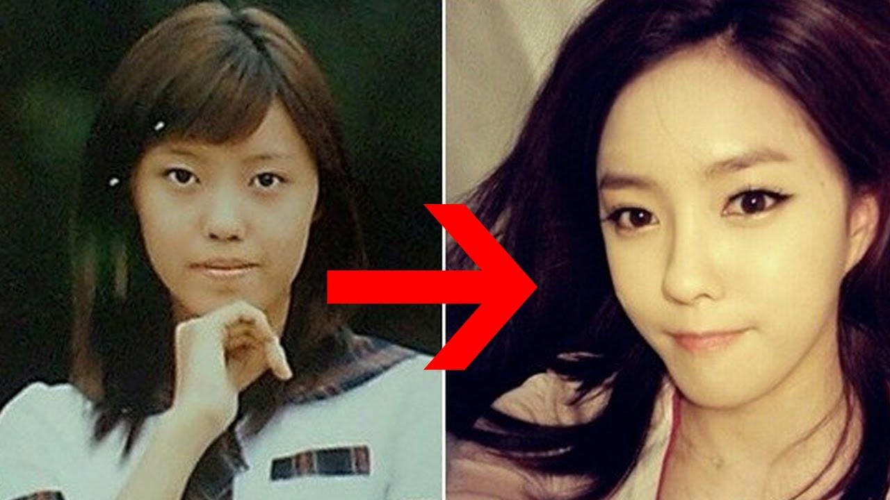 15 korean celebrities that admitted having cosmetic enhancements