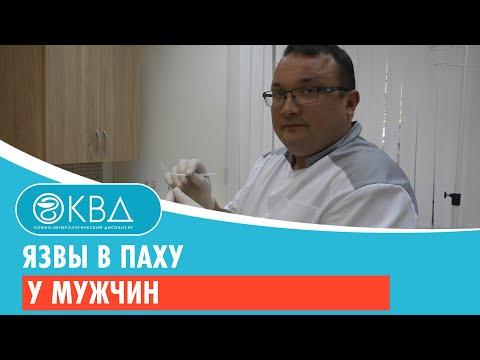 Язвы в паху у мужчин. Клинический случай №52