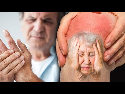 IF YOU HAVE Joint and Muscle Aches OR Headaches and Migraines AND Skin Problems! MUST WATCH!