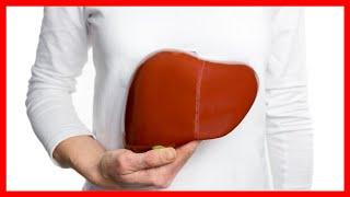 Cómo Curar Por Siempre HÍGADO GRASO 🍵 Hígado Graso Tratamiento Natural
