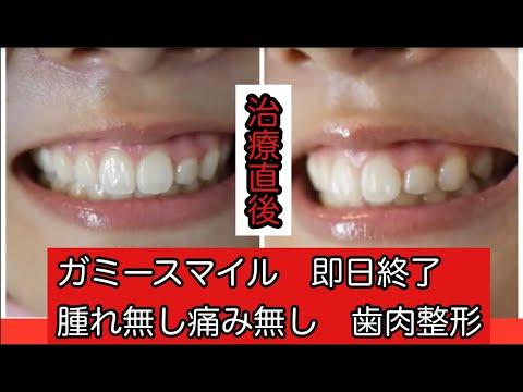 笑った時に歯茎が全く見えなくなった