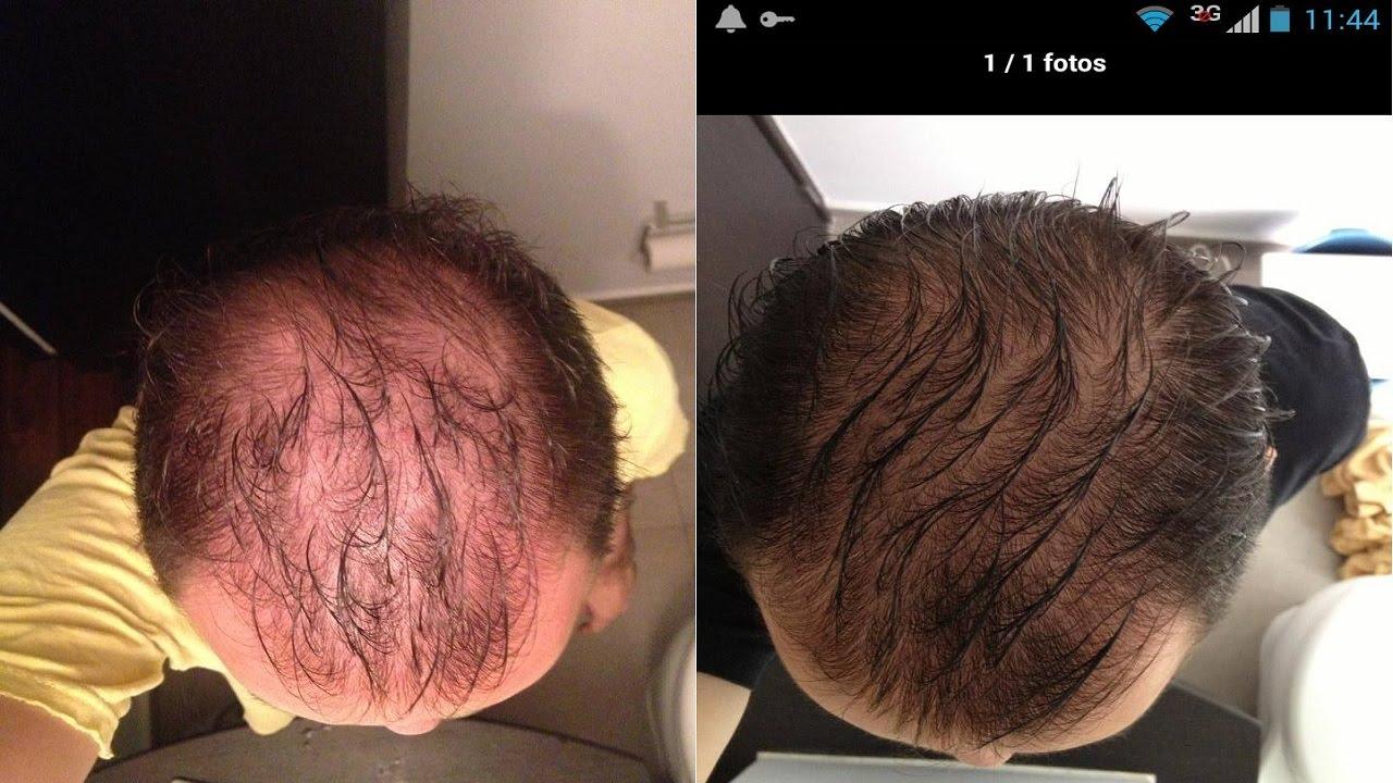 El aceite de linaza para los cabellos de la máscara de la caspa
