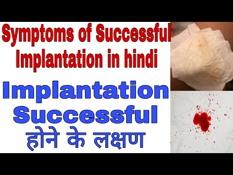Common symptoms of successful implantation in hindi / implantation symptoms in hindi  #sunilhealth