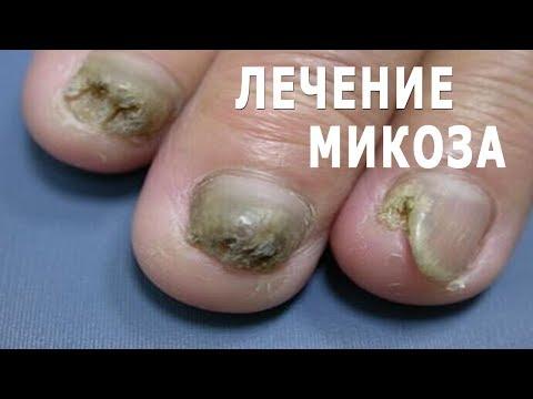 Грибок ногтей. Лечение народными средствами в домашних