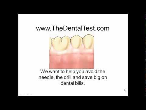 tooth-decay,-small-cavity-leading-to-toothache-and-extraction.