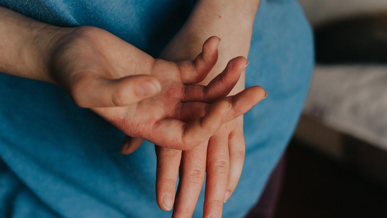 A rühesség tünetei és kezelése