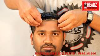 Non Surgical Hair Fixing / Bonding in Hyderabad, Call 9160401166