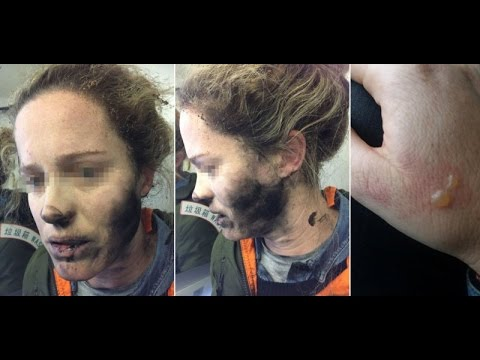 Her Earphones Exploded On A Flight! how to use headphones safely