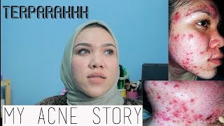 Gambar cover My Acne Story | JERAWAT TERPARAH SELAMA 10 TAHUN! | BAHASA