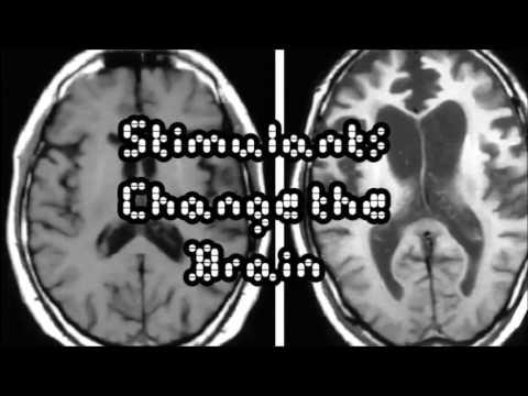ADHD - Are Stimulants Safe?