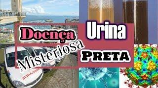 🔴Doença da Urina Preta na Bahia - Saiba Mais