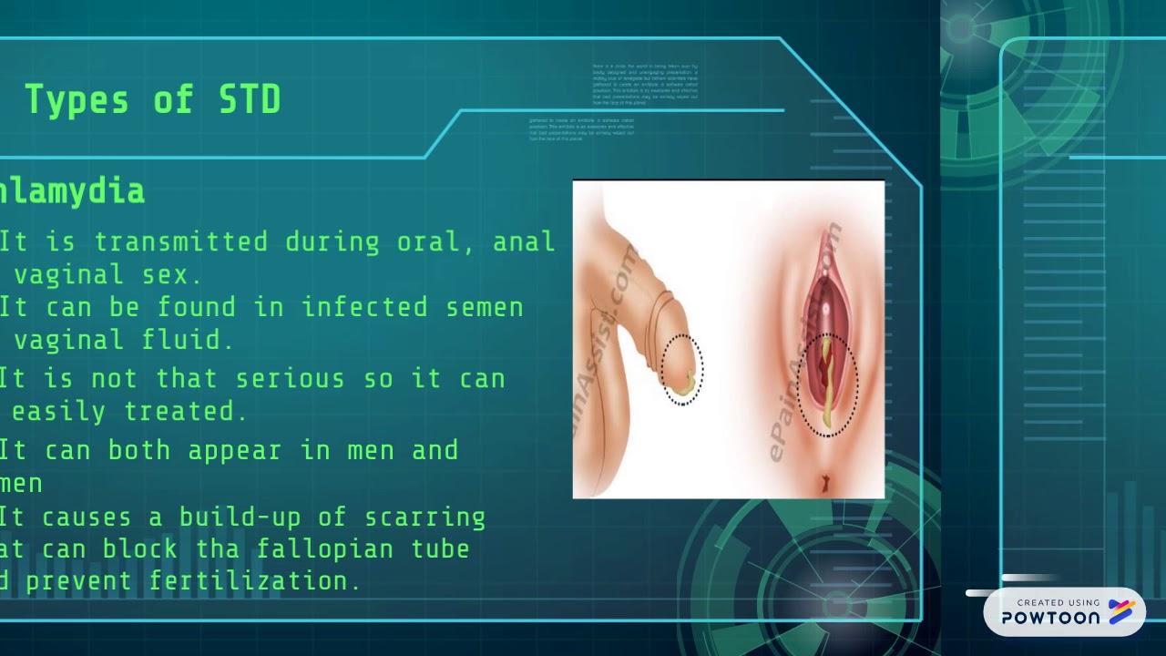 Oral sex transmitted diseases, mr bog dicks hot chicks