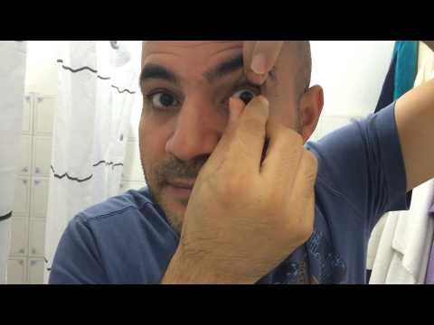 Lens Nasil Cikarilir