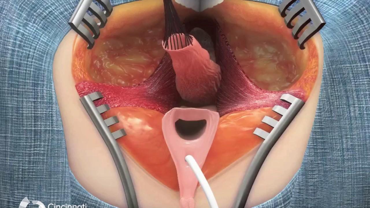 Plastische Chirurgie der Klitoris, Eva robins nacktes shemale