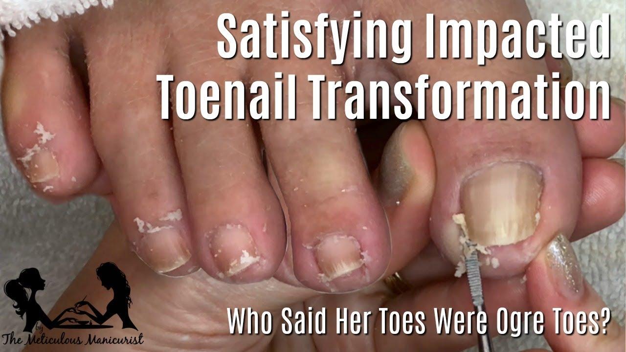 Satisfying Impacted Toenail Relief Pedicure Tutorial Mr