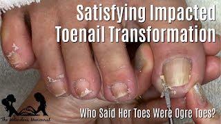 👣 Satisfying Impacted Toenail Relief: Pedicure Tutorial Mr. Meticulous Competitor! 👣