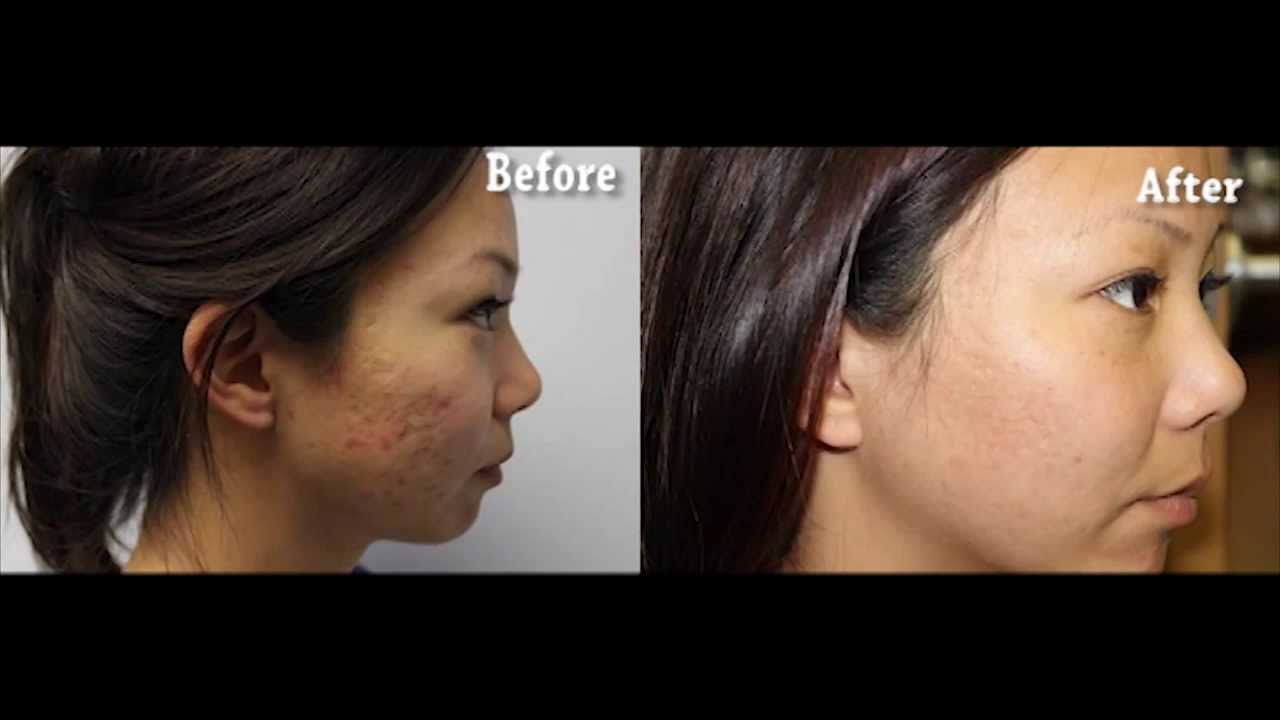 Before After Results Asian Skin Laser Acne Scar Removal Smcs