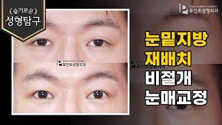 [성형기본지식] 남자 눈밑지방재배치 및 비절개눈매교정