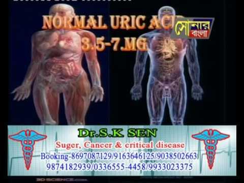 Sonar Bangla Channel|dr. s k sen (uric acid special episode)  December 01  2014