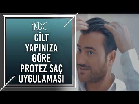 Cilt Yapınıza Göre Protez Saç Uygulaması - HDC