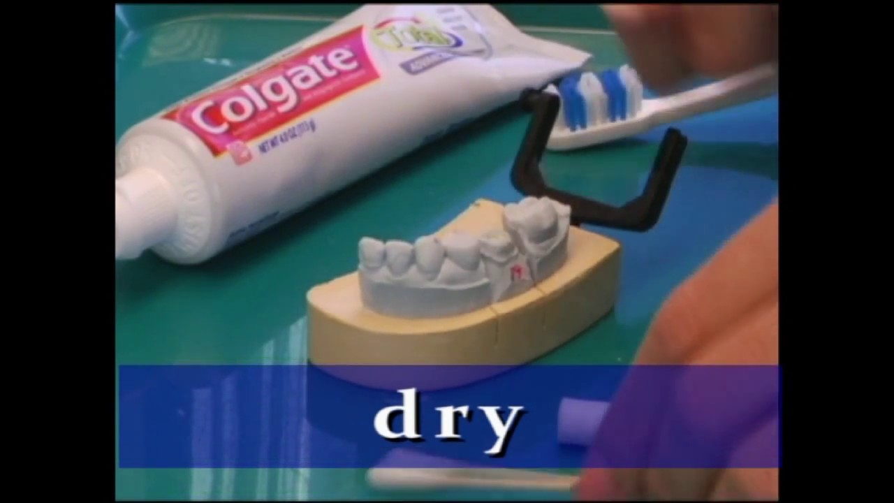 Dr Huszti Demo Crown Off Cement A Loose Temporary Crown