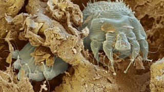 Where Does Scabies Come How Get Rid Scabies Rash Natural Cure Scabies Scabies Facts