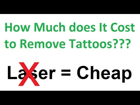 How much does it cost to remove tattoos this is the answer for How much does a tattoo removal cost