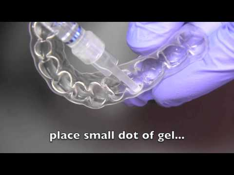 How to use and maintain custom teeth whitening trays by Helm | Nejad | Stanley - Dentistry