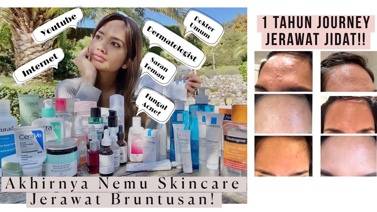 My Skincare Journey Untuk Jerawat Bruntusan di Dahi! Finally Bye to My Bruntusan!!!